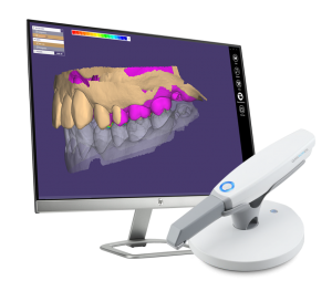 Intraoral-Scanner-monitor-300×263