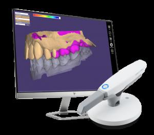 Intraoral-Scanner-monitor-300×263